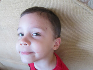 My little knucklehead got stitches, just for this blog photo